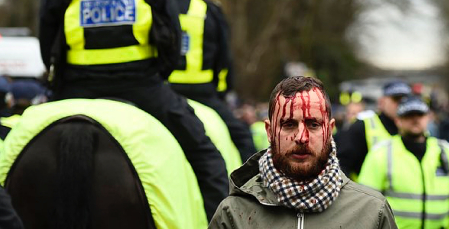 PICS: There Were Violent Scenes Ahead Of The North London Derby