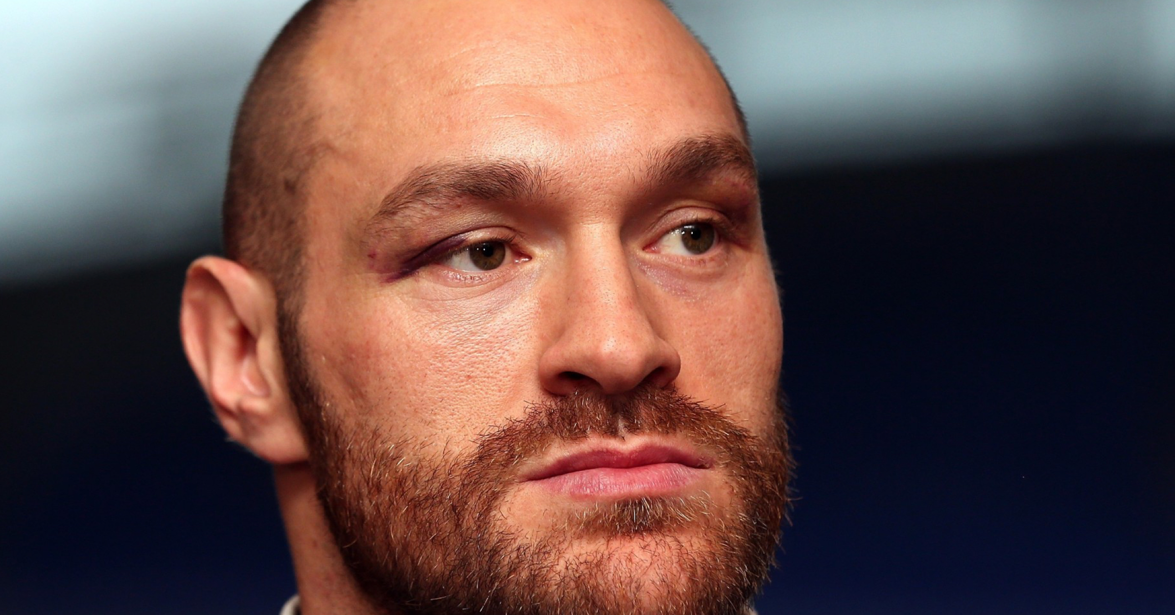 Tyson Fury Posts Deeply Open Letter About His Physical & Mental Health