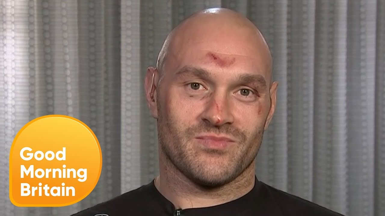 """Tyson Fury: """"Everybody Who Watched the Fight Knows I've Won"""""""