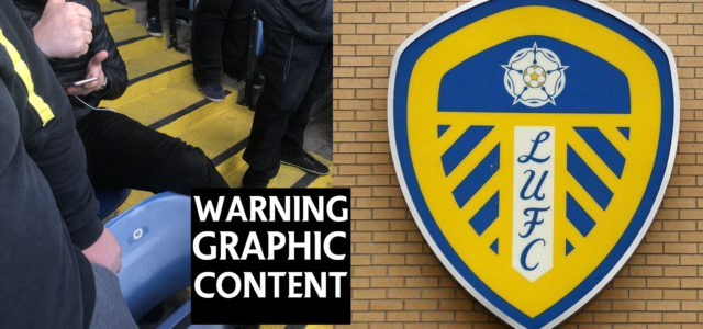 WARNING GRAPHIC CONTENT: Leeds Fan Broke His Ankle Celebrating Yesterday's Winner
